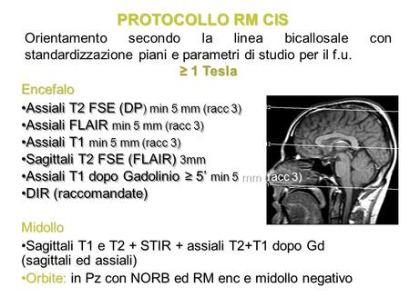 PROTOCOLLO RM CIS Assiali T2 FSE (DP ) min 5 mm (racc 3) Assiali FLAIR min 5 mm (racc 3) Assiali T1 min 5 mm (racc 3) Sagittali T2 FSE (FLAIR) 3mm Assiali.