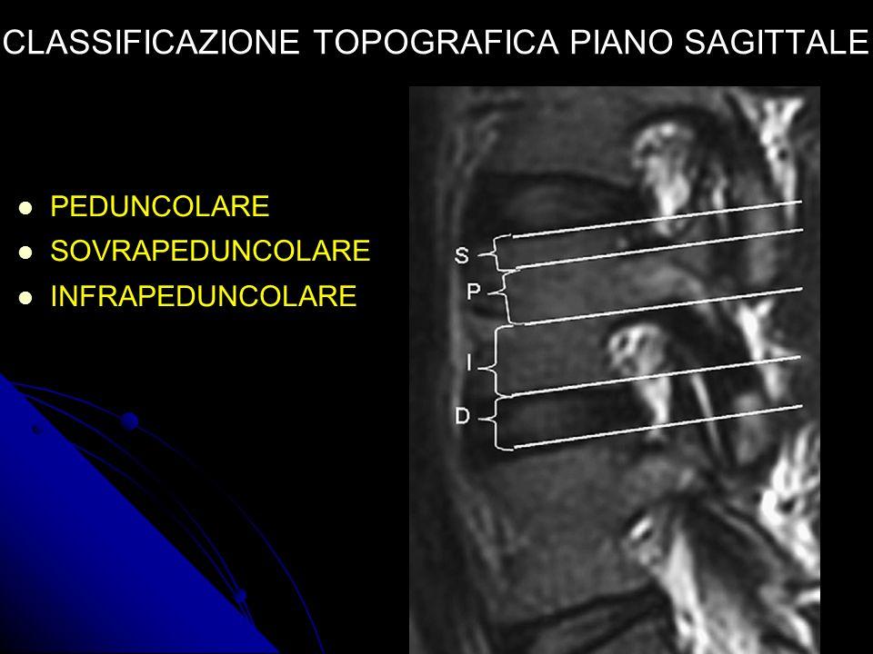 verde: spazio centrale blu: spazio subarticolare (preforaminale) gialla: spazio foraminale rossa: spazio extraforaminale bianca: spazio anteriore CLASSIFICAZIONE TOPOGRAFICA PIANO ASSIALE