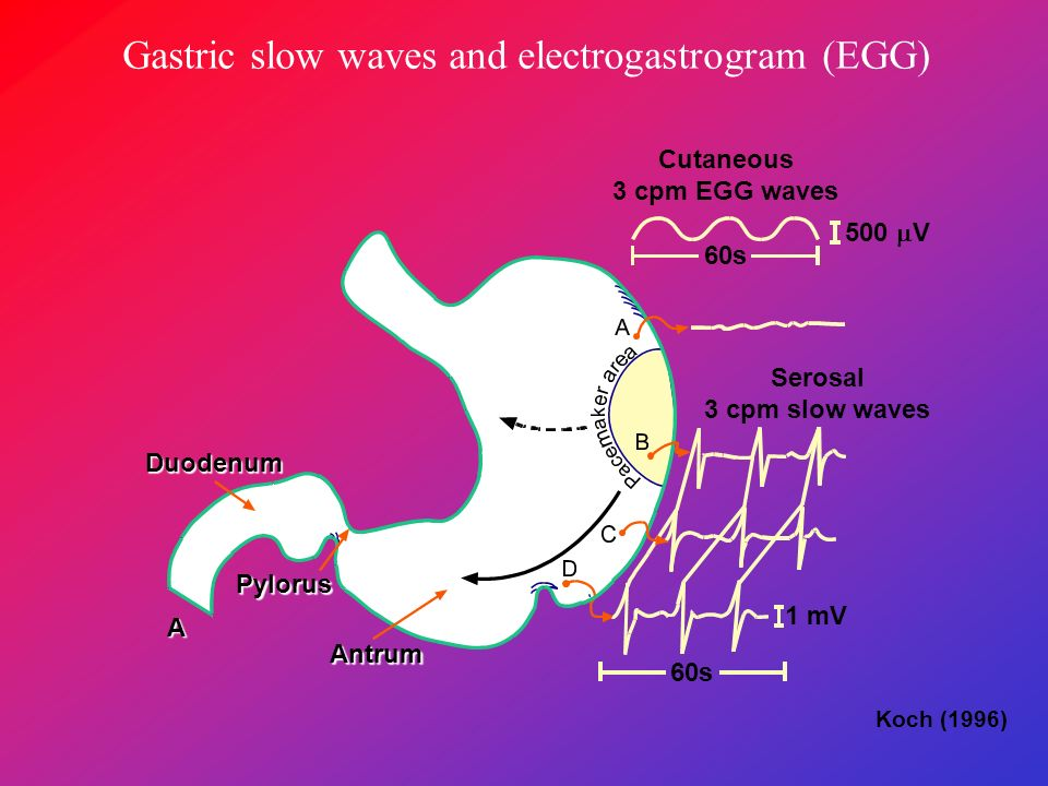 Normal frequency of gastric waves on the left side and tachygastria on the right side of the figure