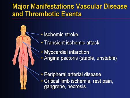 Vascular disease is the result of a generalized process that affects multiple vascular beds, including the cerebral, coronary, and peripheral arteries.