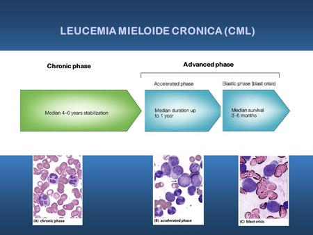 Chronic phase LEUCEMIA MIELOIDE CRONICA (CML) Advanced phase.