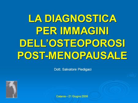 LA DIAGNOSTICA PER IMMAGINI DELL'OSTEOPOROSI POST-MENOPAUSALE
