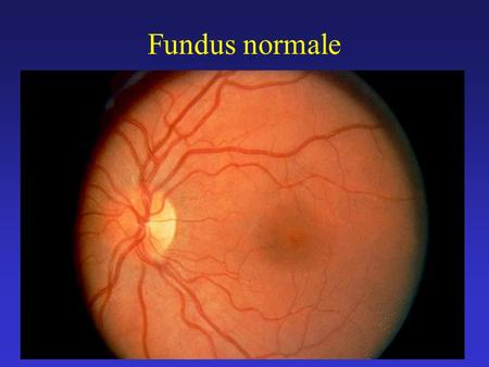 Fundus normale.