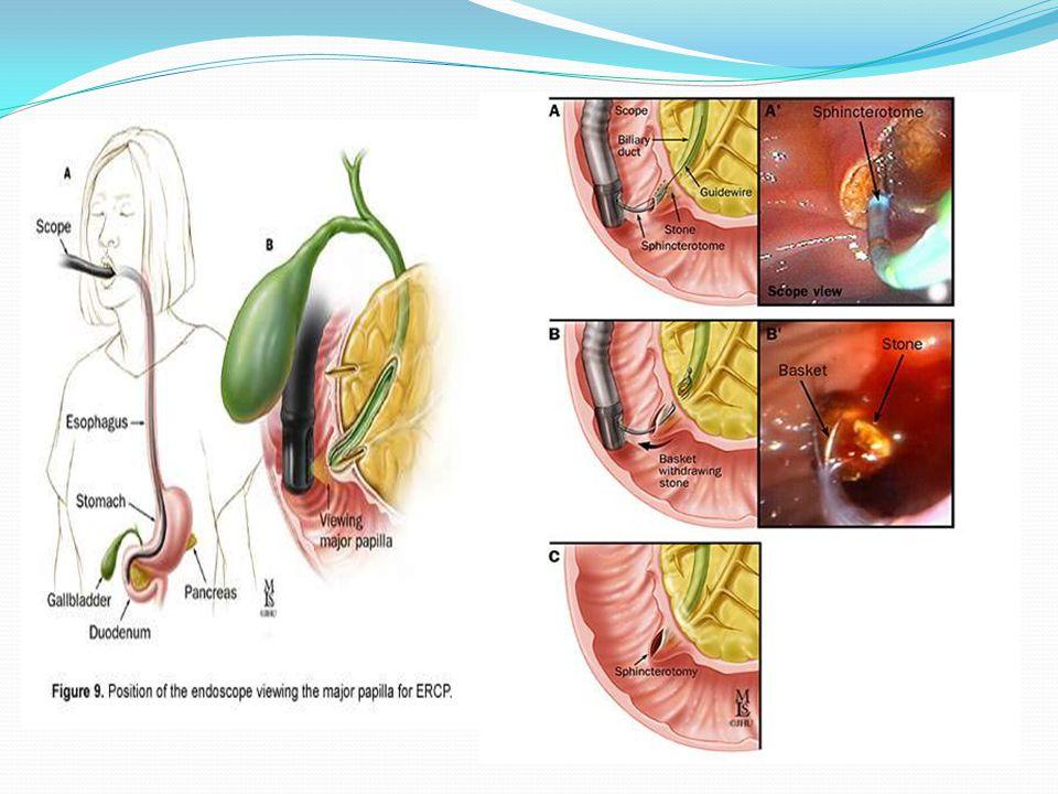 PTC (può essere seguito dal posizionamento di un'endoprotesi)