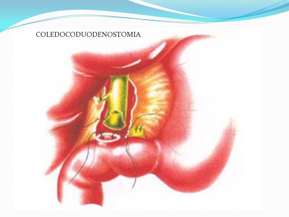 SFINTEROPLASTICA TRANSDUODENALE Viene legata la mucosa dell'ampolla con la mucosa duodenale