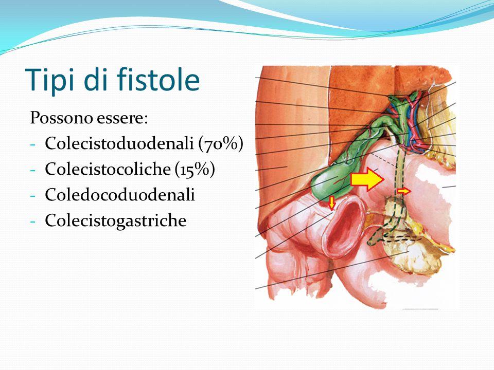 COLECISTODUODENALI Spesso asintomatico Se il calcolo è > 2,5cm può determinare ostruzione intestinale nei tratti a minore diametro, ovvero in ordine di frequenza: - Valvola ileo-ciecale (76%) - Duodeno (21%) - Colon sigmoideo (2%)