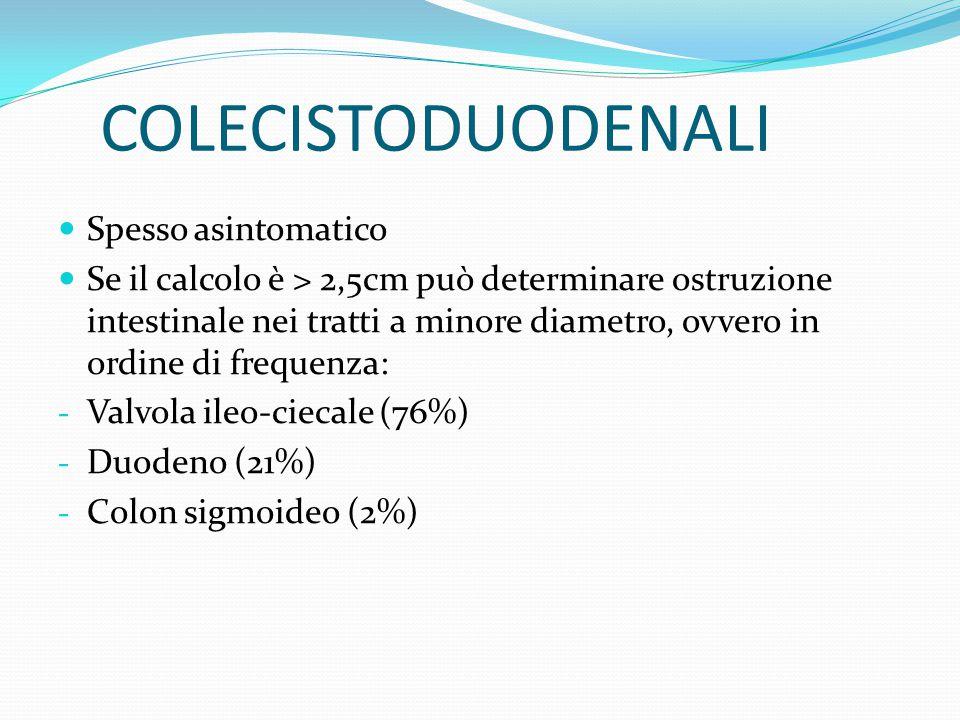 ILEO BILIARE Si intende un occlusione intestinale dovuta all'incuneamento a livello della valvola ileocecale di un calcolo biliare migrato grazie ad una fistola colecistoduodenale.