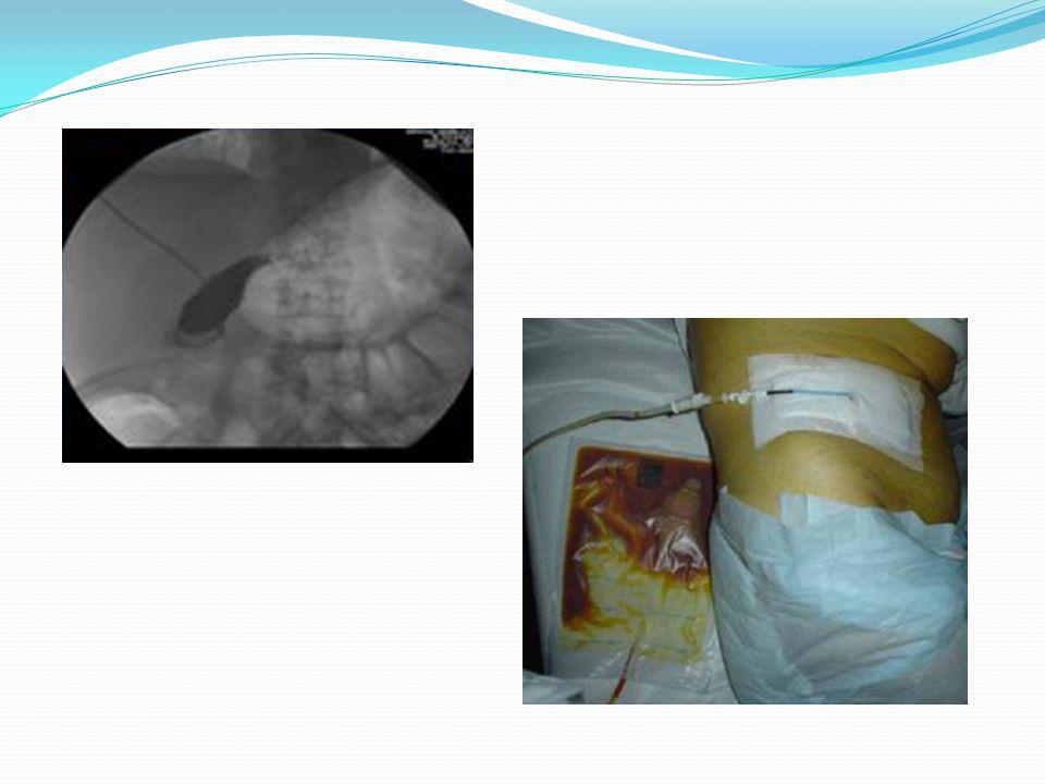 Complicanze dell'intervento (0,01- 0,5%) sono Colecistite enfisematosa Lesione delle vie biliari Ascessi Infezione della ferita Emorragie: arteria cistica è la sede più frequente Danno d'organo: particolarmente fegato e intestino specie se ci sono intense aderenze con la colecisti Laparocele Sindrome da malassorbimento Perforazione della colecisti: possibile peritonite