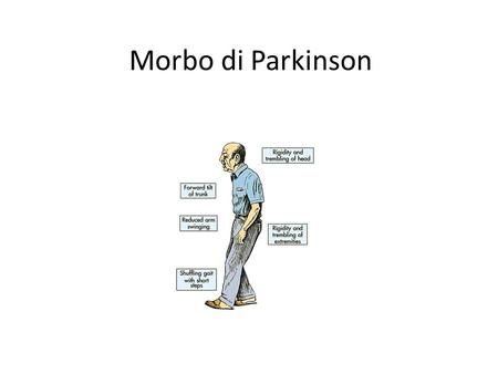 Morbo di Parkinson.