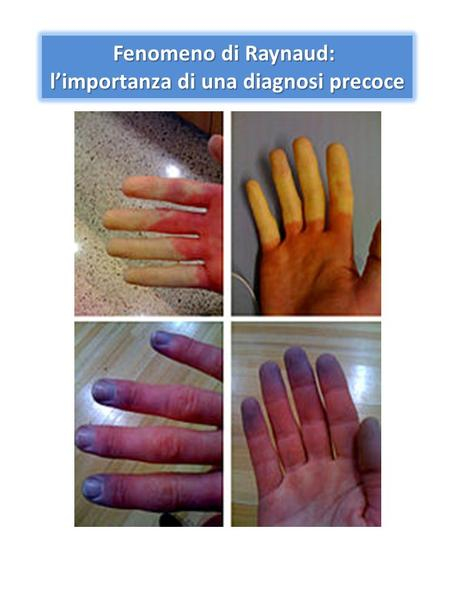 Fenomeno di Raynaud: limportanza di una diagnosi precoce.