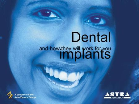 Dental implants and how they will work for you. Gli impianti dentali Astra Tech costituiscono un metodo sicuro ed affidabile per sostituire i denti, sia.