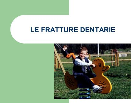 LE FRATTURE DENTARIE.