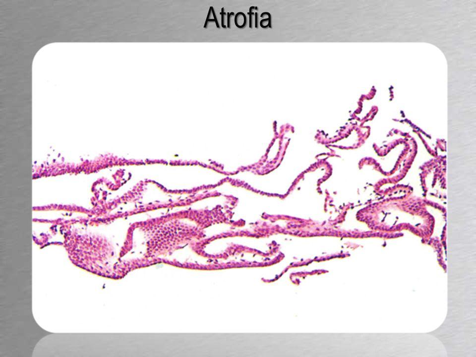 Atrofia: diagnosi differenziale