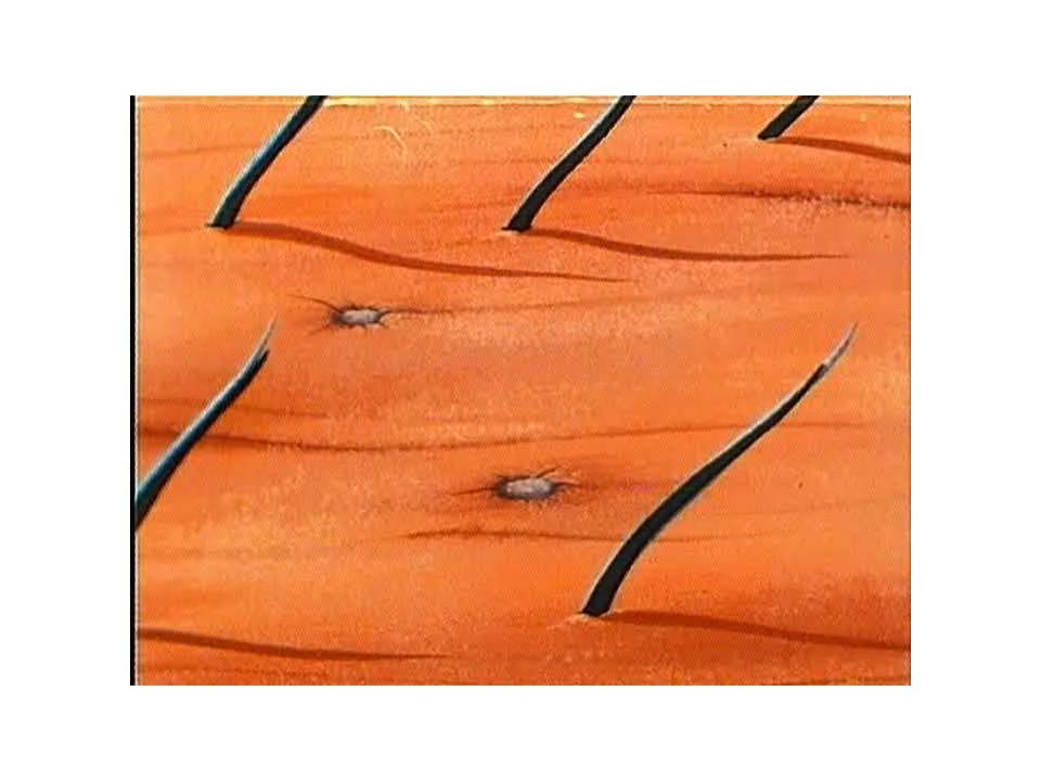 Gli annessi cutanei Gli annessi cutanei sono particolari strutture derivanti dalla trasformazione dell'epidermide.