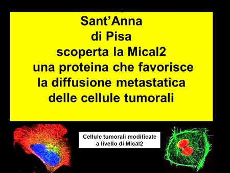 Cellule tumorali modificate a livello di Mical2