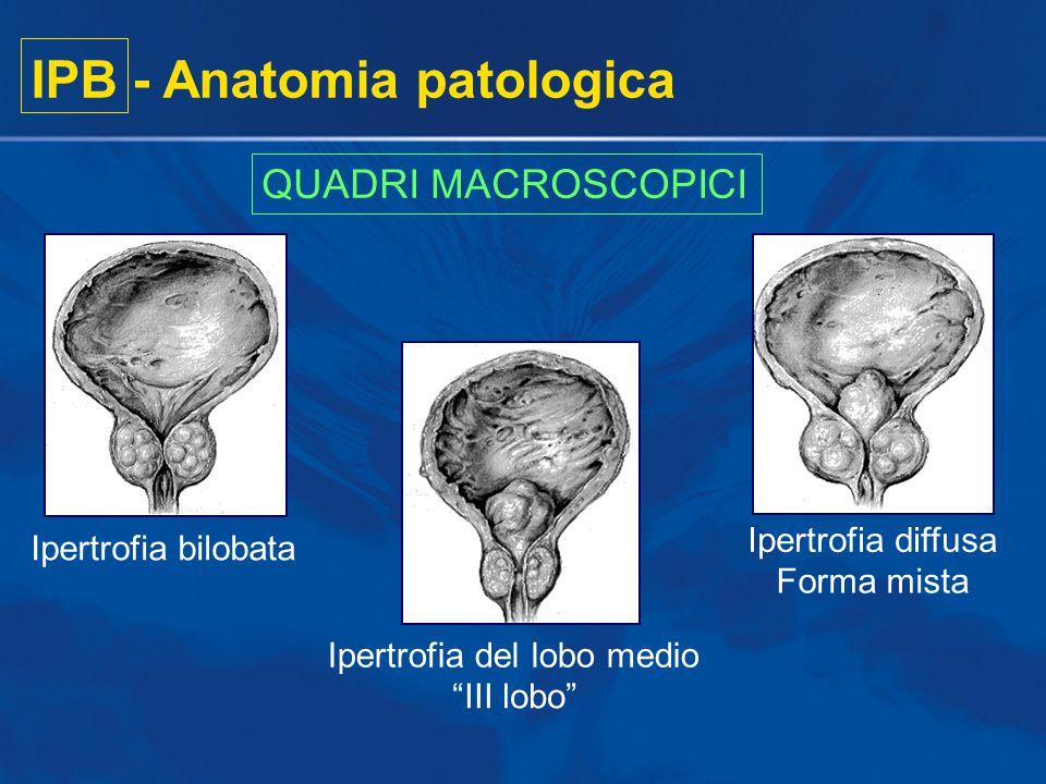 IPB - Anatomia patologica Iperplasia epitelialeIperplasia stromale (perlopiù periuretrale)(perlopiù transizionale) QUADRI MICROSCOPICI