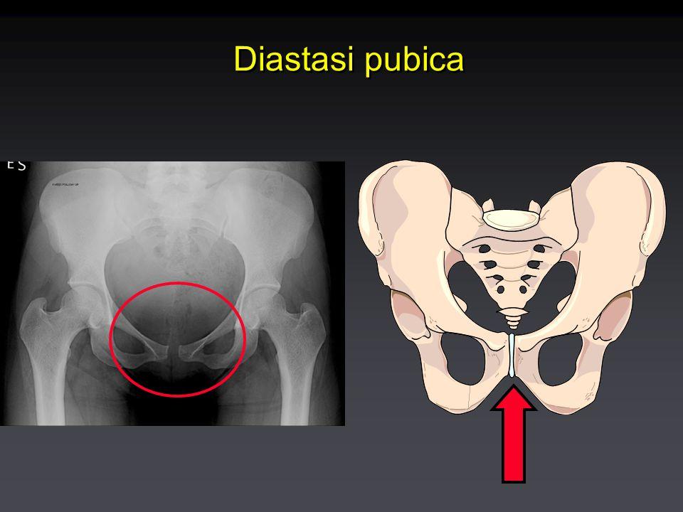 Diastasi publica Frequenza: rara (1:3000 parti) Patogenesi: 'rilassamento' del legamento secondaria a ormoni gravidic (progesterone, relaxina) in combinazione con peso del feto/dilatazione in corso di travaglio ; più frequente con feti macrosomici Clinica: esordio antepartum, durante o 24-48 dopo il parto; dolore sovrapubico irradiato o no alle cosce, con difficoltà alla deambulazione Diagnosi: Separazione > 10 mm than 10-13 mm eco o RX Trattamento: Conservativo, analgesici; di solito risoluzione in 1-8 settimane.