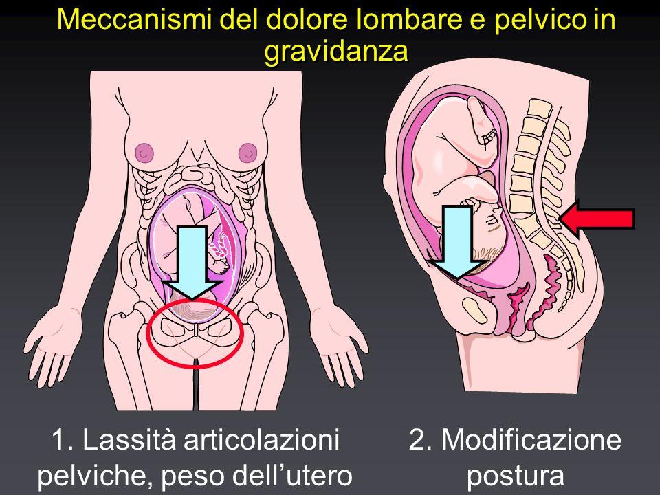 Localizzazione del dolore in gravidanza lombare pelvico sciatalgia pelvico laterale pubalgia