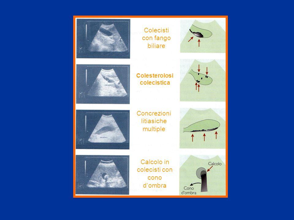 COLEDOCOLITIASI:diagnosi Dimensioni via biliare Dimensioni via biliare Dimensioni calcolo Dimensioni calcolo Buona visualizzazione della via biliare Buona visualizzazione della via biliare Rapidità insorgenza ittero Rapidità insorgenza ittero Esperienza delloperatore Esperienza delloperatore Specificità 95-100% Sensibilità 22-80% Amouyal P, Gastroenterology 1994