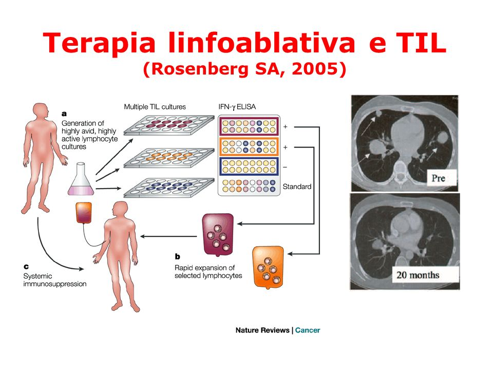 Adoptive immunotherapy of advanced melanoma: Toxicity and clinical response 50 patients with IL-2-unresponsive melanoma Generation of TILs81% Response rate (CR+PR)51–72% (chemo-TBI myelodepletion) Mean response duration11.5 months Sites of responseLung, liver, LN, skin, subcute, brain Response to a second treatment 47% (8/17) Problems: Toxicity Overall survival Dudley et al.