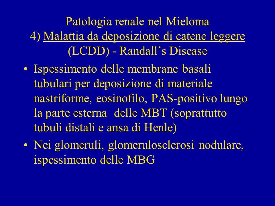 4) Malattia da deposizione di catene leggere (LCDD) - Randalls Disease Alla immunofluorescenza positività per catene leggere, prevalentemente kappa.