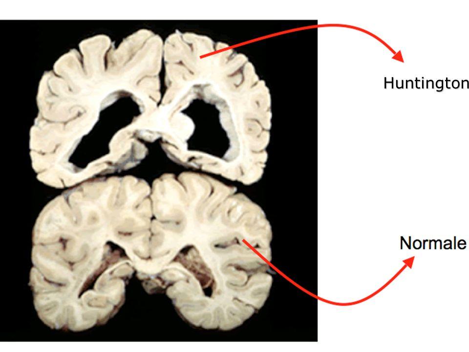 HD: Htt è localizzata nel citoplasma, assoni, sinapsi e nel nucleo.