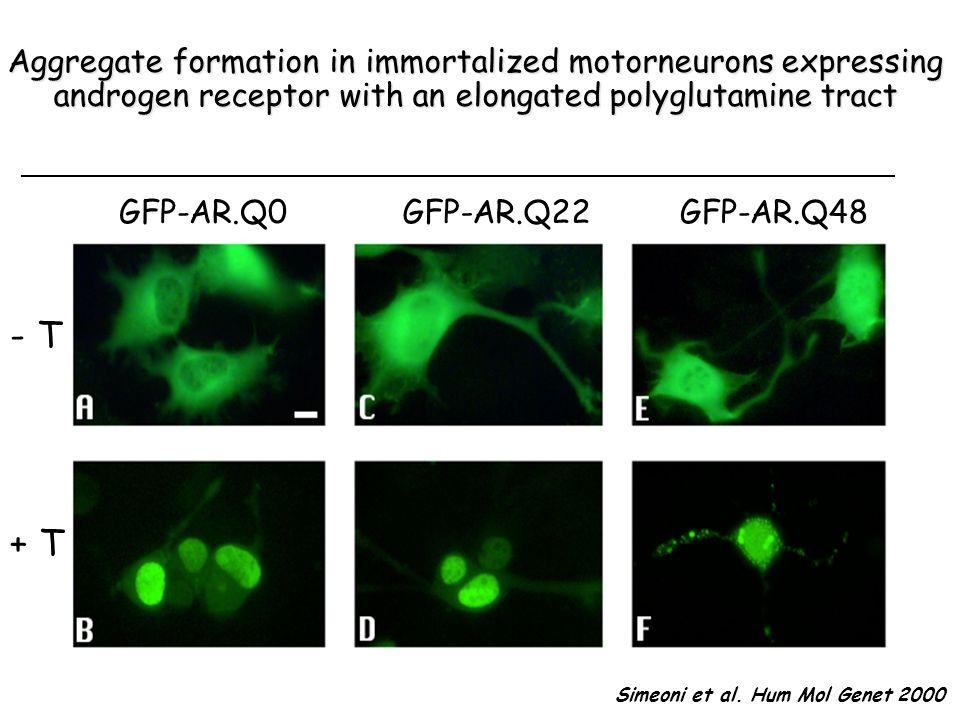 Effects of testosterone on ARpolyQ solubility in SBMA Rusmini et al. Neurobiol Ag 2007