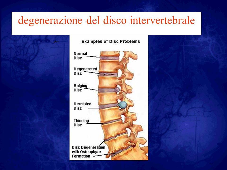 Sintomatologia sciatica, ossia dolore lungo la gamba.