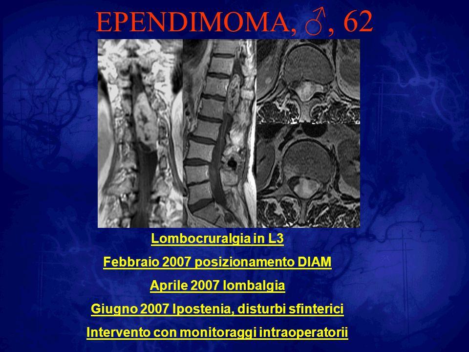EPENDIMOMA,, 62 POSTOP Risoluzione rapida sintomatologia algica Recupero deficit motorio dopo neuroriabilitazione