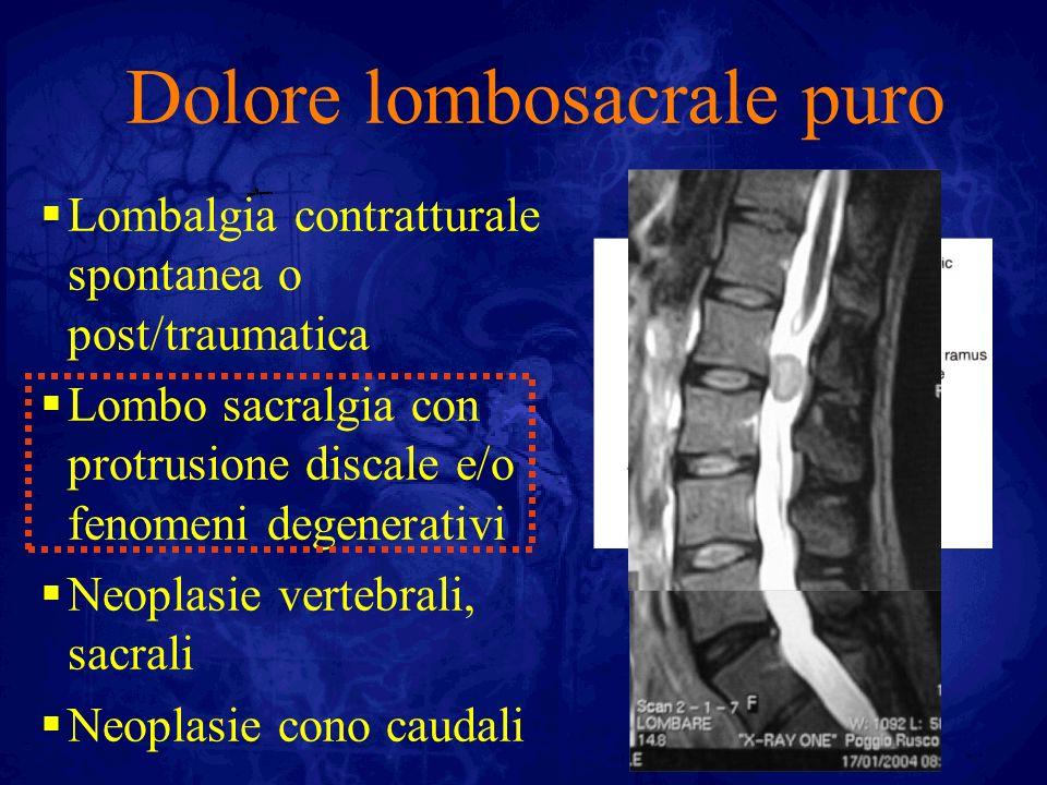 Irradiazione radicolare Ernia discale Paramediana Foraminale Extraforaminale Bulging discale eccentrico Artropatia delle faccette e cisti articolari Neoplasie vertebrali e/o caudali/radicolari