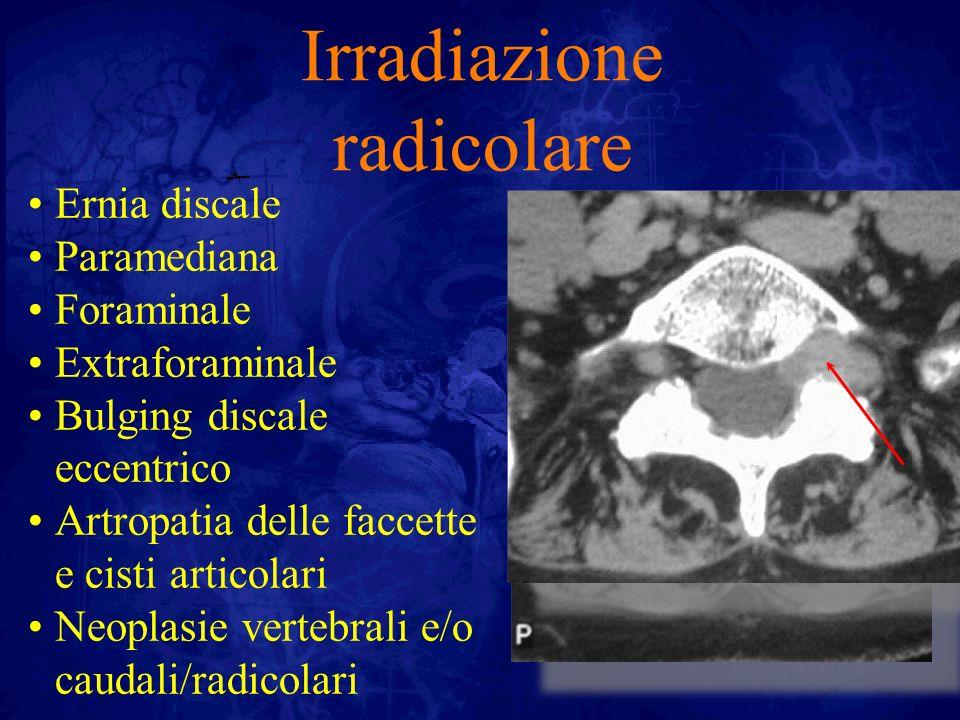 Irradiazione pseudoradicolare Sd delle faccette Shopping back Swing syndrome Artropatia di sacro iliache e/o coxofemorali Sd contratturali Sd iliolombare
