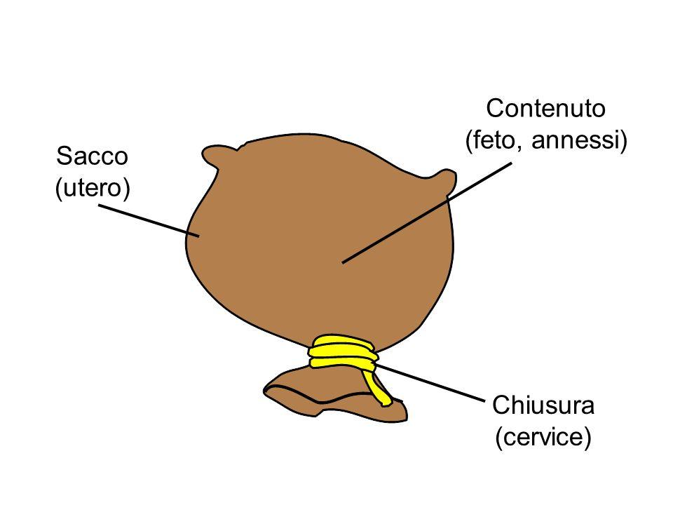 Troppo contenuto Sacco piccolo Chiusura inefficace Gemelli Polidramnios Malformazioni uterine fibromi .