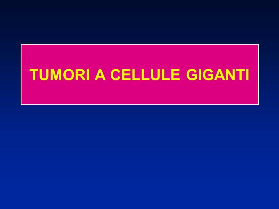 Rari (4 a 10% dei tumori primitivi ossei) TUMORI A CELLULE GIGANTI