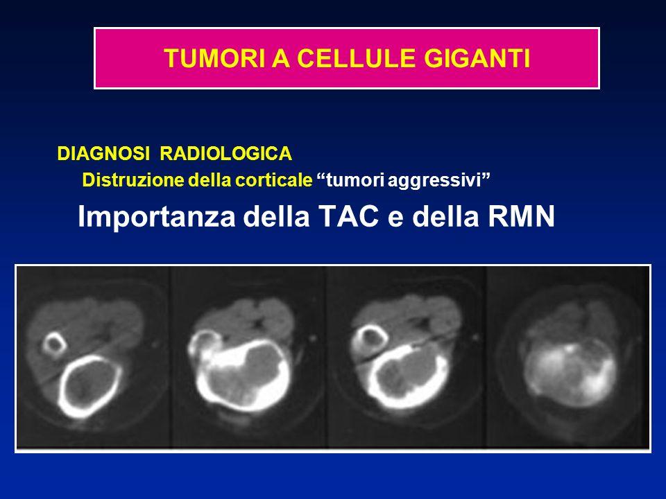 Biopsia chirurgica Logge ossee Tessuto molle scamosciato o brunastro Metacarpo Rotula
