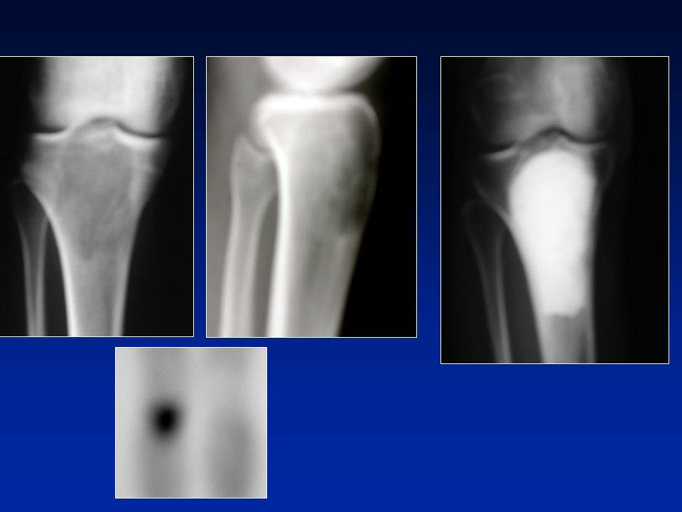 Diagnosi differenziale radiologica con i tumori epifisari : - Condroblastomi epifisari benigni - Cisti aneurismatica - Tumori bruni di RECKLINGHAUSEN Condroblastoma Cisti aneurismatica Diagnosi differenziale