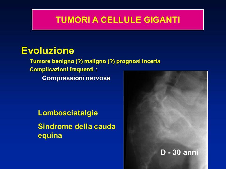 D - 27 anni U - 32 anni TUMORI A CELLULE GIGANTI Evoluzione Tumore benigno (?) maligno (?) prognosi incerta Complicazioni frequenti : Compressioni nervose