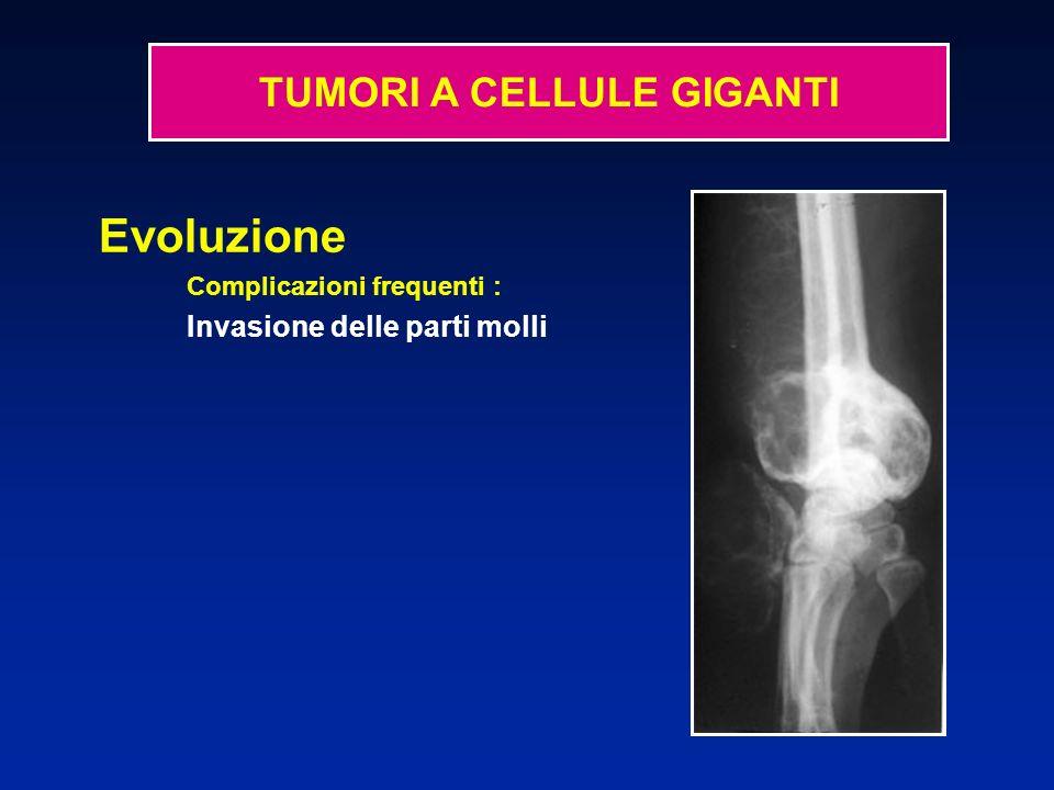 Evoluzione Tumore benigno (?) maligno (?) prognosi incerta Complicazioni frequenti : Recidive frequenti (50 %) Intervallo 5 mesi a 20 anni.