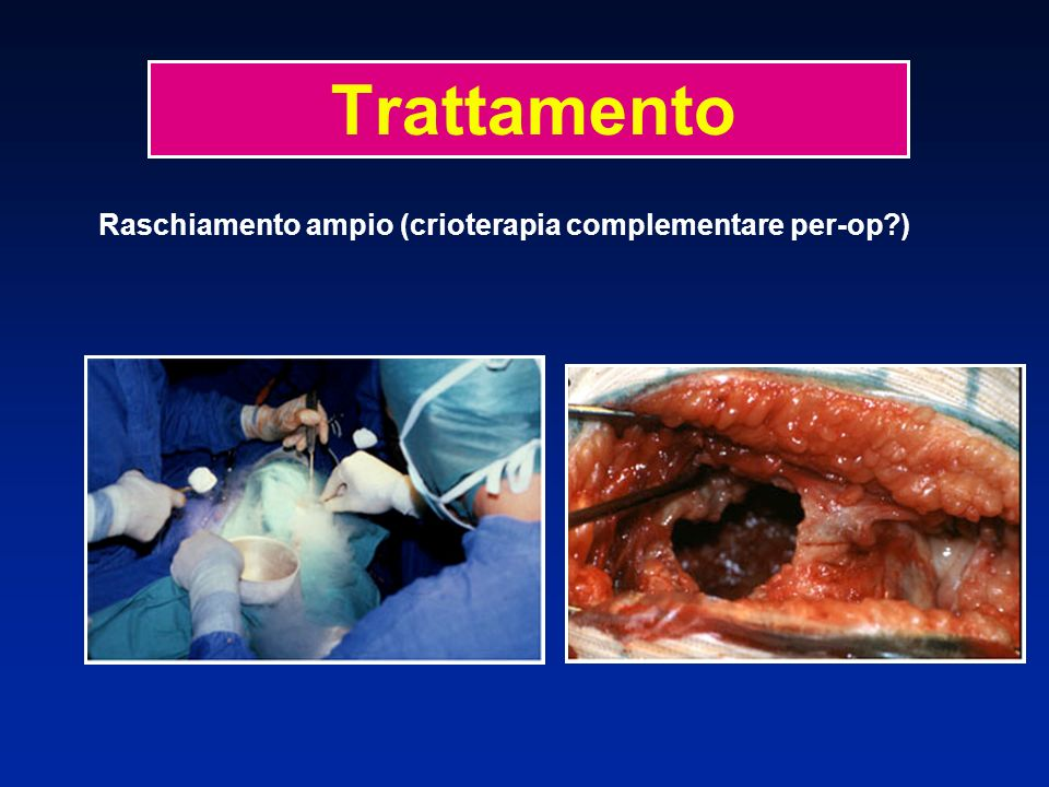 Raschiamento ampio + riemimento osseo (autotrapianto, allotrapianto) Trattamento