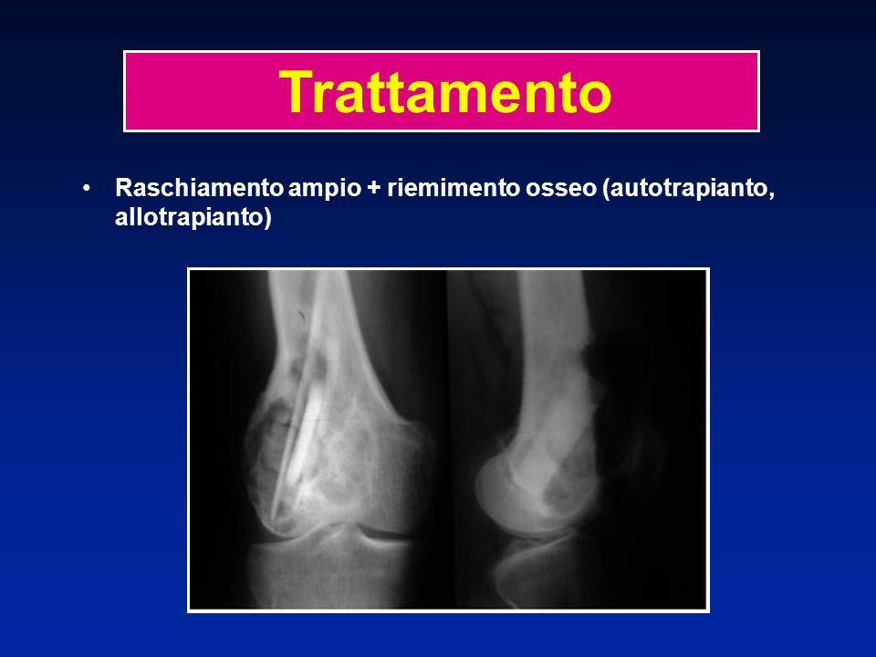 Raschiamento ampio + riemimento osseo (autotrapianto, allotrapianto)