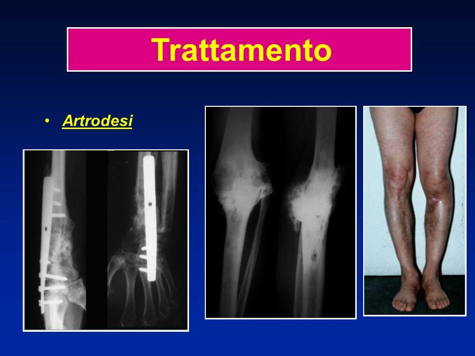 Artrodesi + 19 anni Trattamento