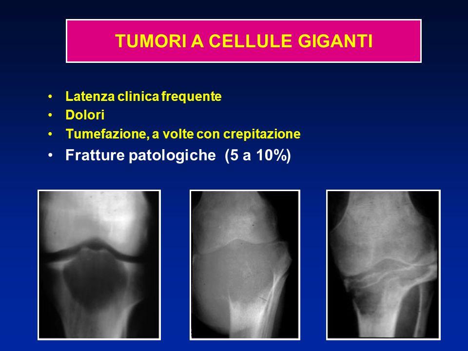 Latenza clinica frequente Dolori Tumefazione, a volte con crepitazione Fratture patologiche (5 a 10%)