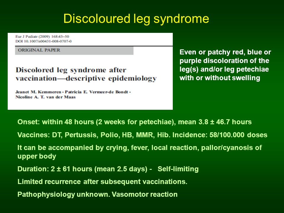 Matteo, 3-month-old Discoloured leg syndrome after l and II dose of hexavalent + pneumococcal vaccine Discoloured leg syndrome