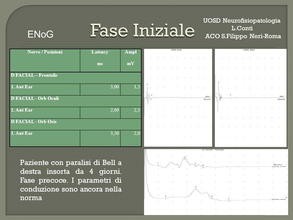 Nervo / PosizioniLatencyAmpl msmV D FACIAL – Frontalis 1.