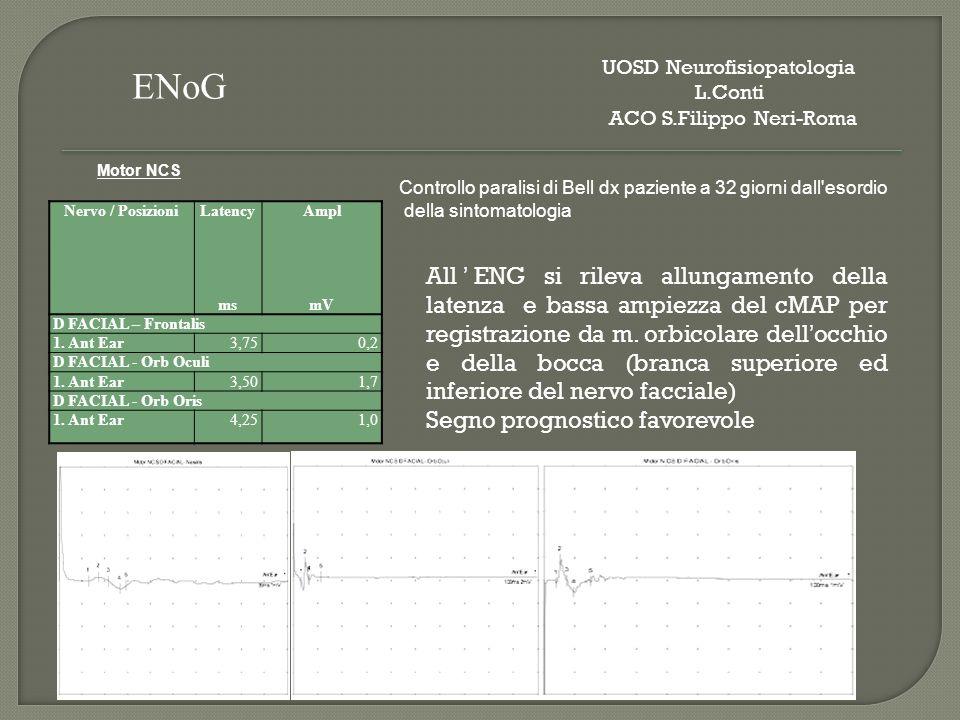 Tabella Riepilogativa EMG SpontaneousMUAPRecr uitm ent IAFibPSWFascH.F.AmpDur.PPPPatte rn D.