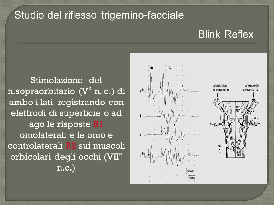 Blink Reflex - 2 CANALI Nervo / PosizioniRec.SiteR1R2 R2-R1 ms Orbic Oculi – SOVRAORBITARIO 1.