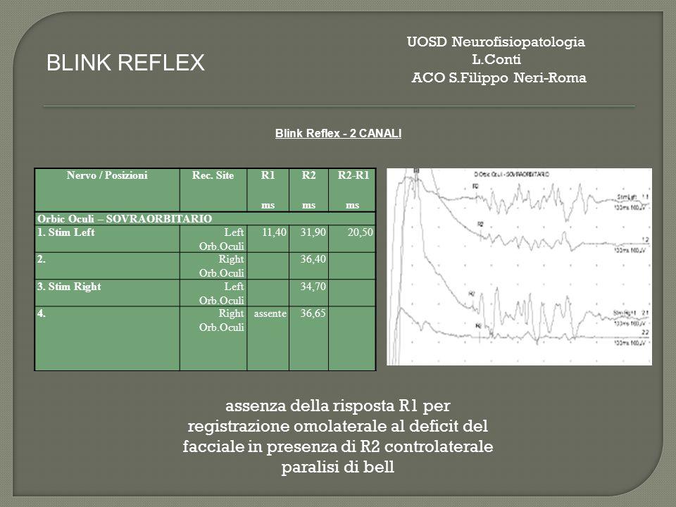Nervo / PosizioniRec.SiteR1R2 R2-R1 ms Orbic Oculi - SOVRAORBITARIO 1.