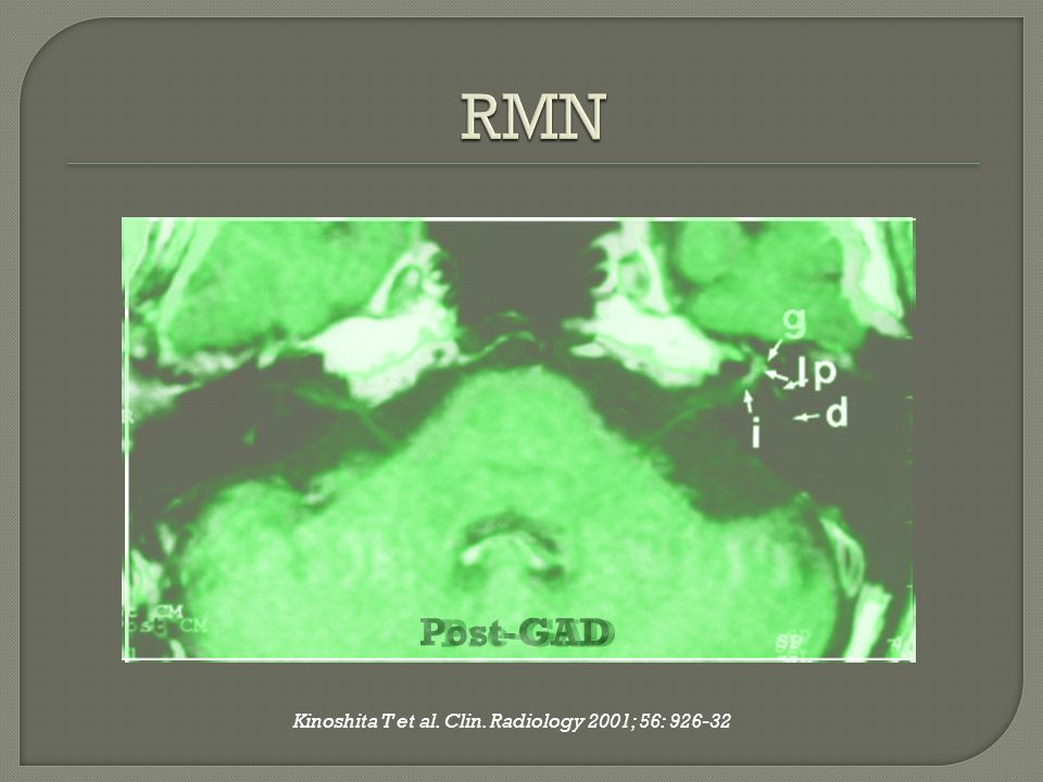 Kinoshita T et al. Clin. Radiology 2001; 56: 926-32