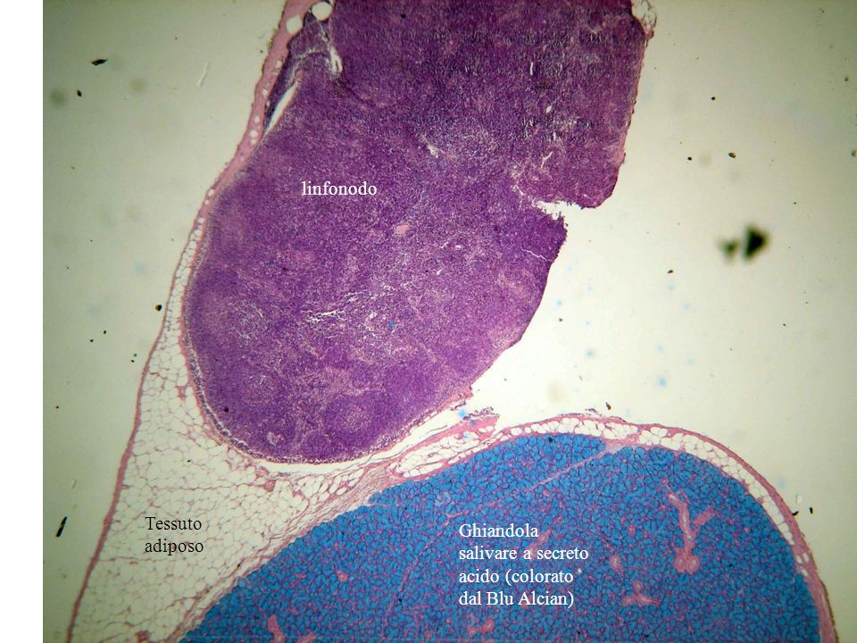 Ghiandola salivare a secrezione mista (probabilmente sierosa e mucosa, cioè a secrezione proteica e prevalentemente polisaccaridica) Adenomeri mucosi Adenomeri sierosi