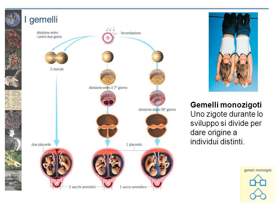 I gemelli Gemelli monozigoti