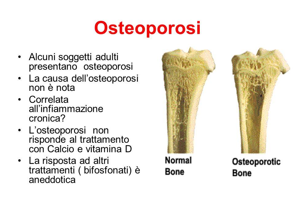 Osteoporosi Alcuni soggetti adulti presentano osteoporosi